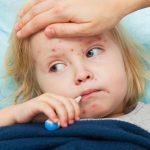 vaccin-ror-epidemie-rujeola